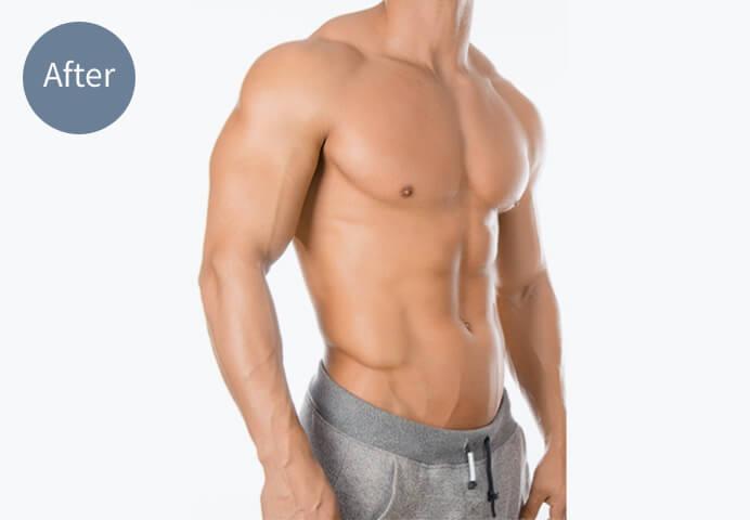 「筋肉増量・増強」のアフターの画像