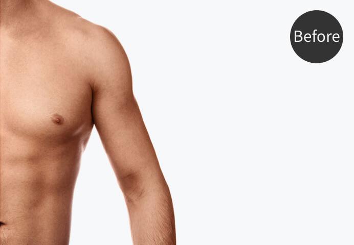 「筋肉増量・増強」のビフォー画像