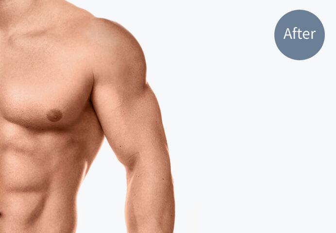 「筋肉増量・増強」のアフター画像